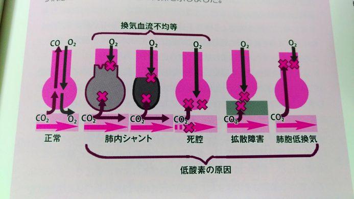 ナース・研修医のための世界でいちばん簡単に血ガスがわかる、使いこなせる本